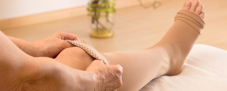 6 práticas que podem evitar as varizes